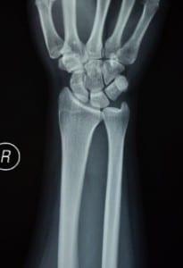 wrist x ray