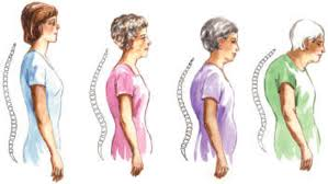 How do you want your spine to look as you age?